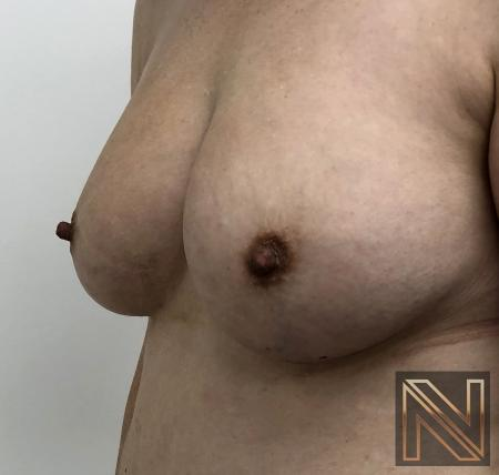 Fat Transfer - Body: Patient 2 - After Image 2