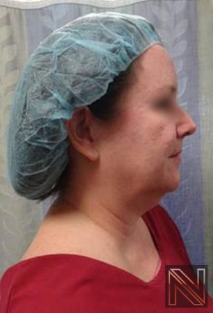 Facelift/Mini Facelift: Patient 4 - Before Image