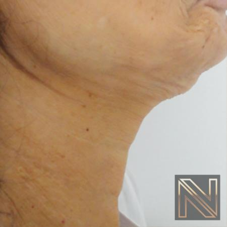 SkinTyte II™: Patient 2 - Before Image