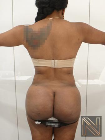 Butt Augmentation: Patient 4 - After Image 4