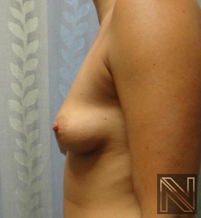 Fat Transfer - Body: Patient 3 - Before Image 2