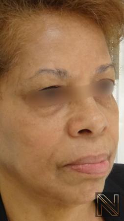 Laser Skin Resurfacing - Face: Patient 2 - After 3