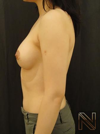 Breast Augmentation: Patient 4 - After Image 4