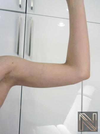Liposuction: Patient 26 - After Image 2
