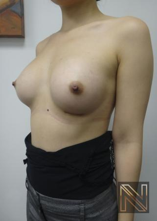 Breast Augmentation: Patient 16 - After Image 3