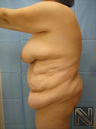 Abdominoplasty: Patient 15 - Before and After Image 2
