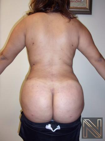 Butt Augmentation: Patient 5 - After Image