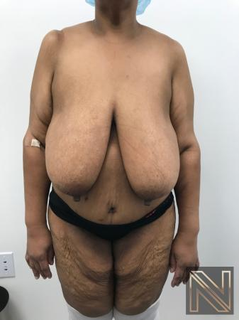 Breast Reduction: Patient 2 - Before 1