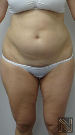 Liposuction: Patient 12 - Before 1