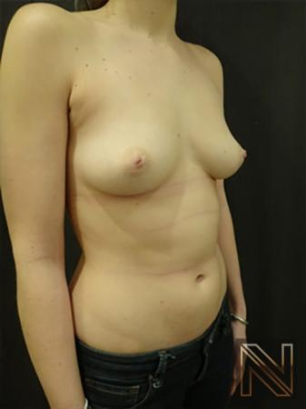 Inverted Nipple Surgery: Patient 3 - Before 3