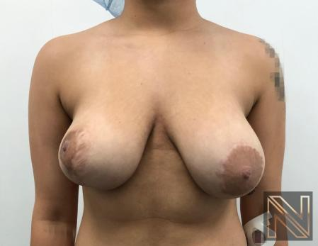 Breast Lift: Patient 17 - Before 1
