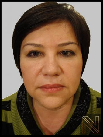 Blepharoplasty: Patient 5 - After Image