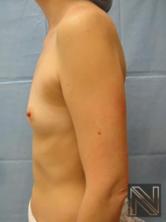 Breast Augmentation: Patient 5 - Before 4