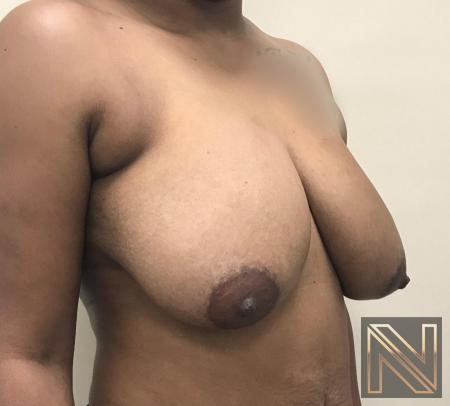 Breast Lift: Patient 14 - Before Image 2