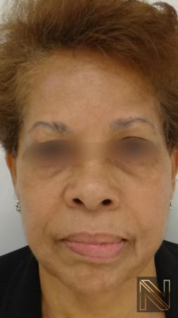 Laser Skin Resurfacing - Face: Patient 2 - After Image 1