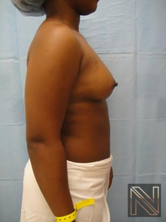 Breast Augmentation: Patient 12 - Before and After Image 5
