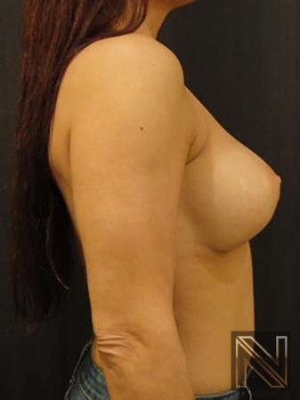 Breast Augmentation: Patient 10 - After Image 5