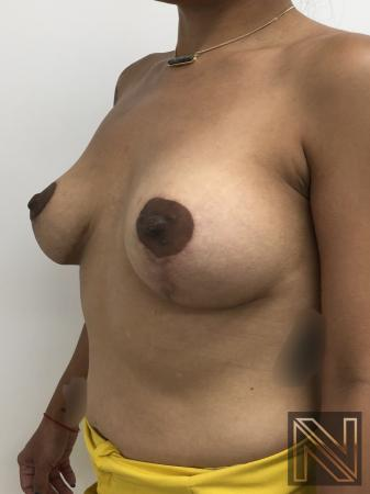 Breast Lift: Patient 1 - After Image 3