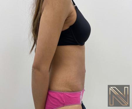 Abdominoplasty: Patient 29 - After Image 2