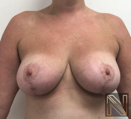 Breast Lift: Patient 16 - After 1
