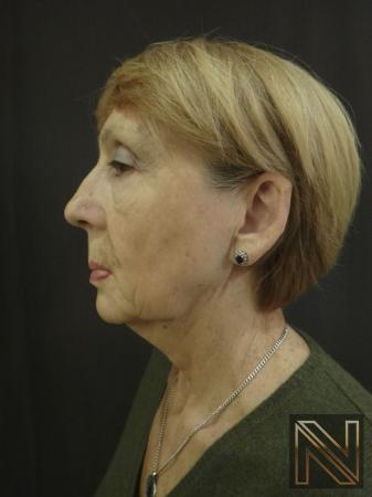 Ultherapy®: Patient 2 - Before and After 5