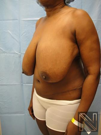 Breast Reduction: Patient 4 - Before 2