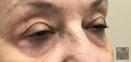 Fractional Resurfacing: Patient 7 - Before and After 2