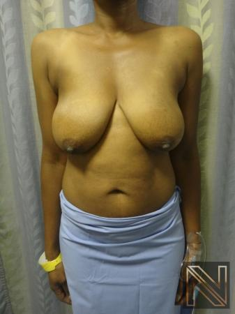 Breast Lift: Patient 2 - Before Image 1