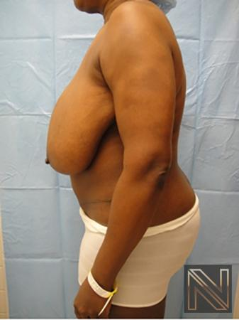 Breast Reduction: Patient 4 - Before 4