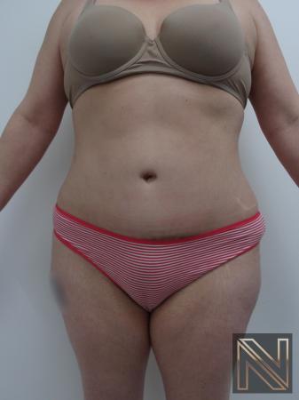 Abdominoplasty: Patient 21 - After Image 1