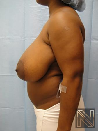 Breast Reduction: Patient 3 - Before Image 4