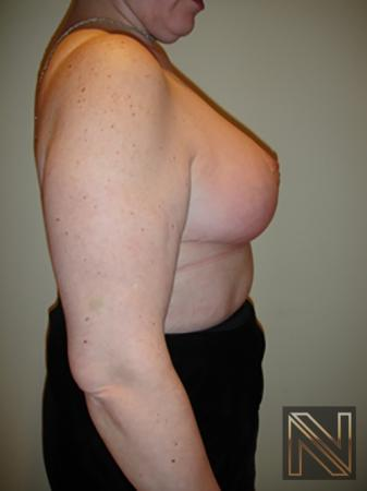 Breast Reduction: Patient 8 - After Image 5