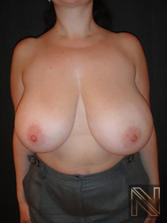 Breast Reduction: Patient 7 - Before Image 1
