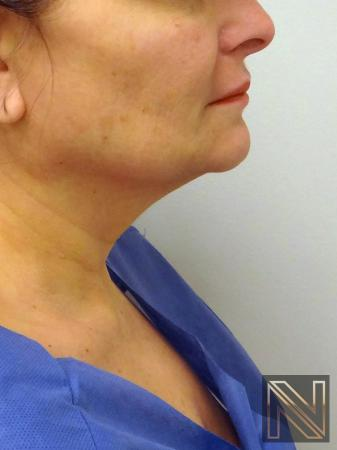 Facelift/Mini Facelift: Patient 8 - Before and After Image 2