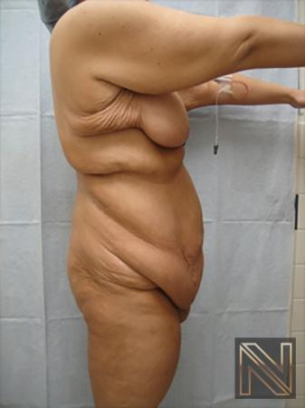 Abdominoplasty: Patient 17 - Before and After Image 3