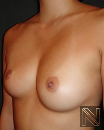 Inverted Nipple Surgery: Patient 1 - Before Image 2