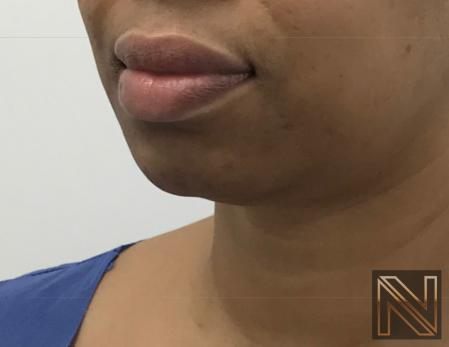 Chin Augmentation: Patient 3 - Before Image 2