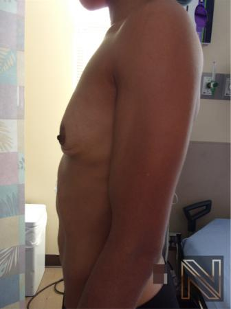 Breast Augmentation: Patient 18 - Before and After Image 3