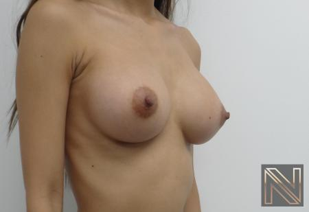 Breast Augmentation: Patient 1 - After Image 4