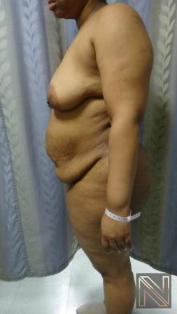 Abdominoplasty: Patient 23 - Before and After 2