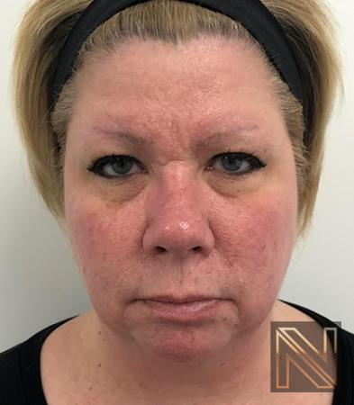Fractional Resurfacing: Patient 2 - Before and After Image 5