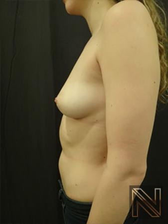 Inverted Nipple Surgery: Patient 3 - Before 4