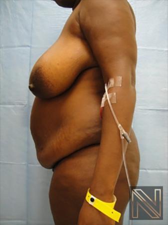 Abdominoplasty: Patient 9 - Before 2