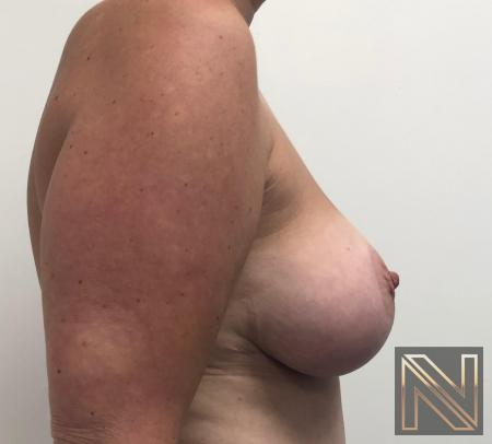 Breast Lift: Patient 16 - After 3