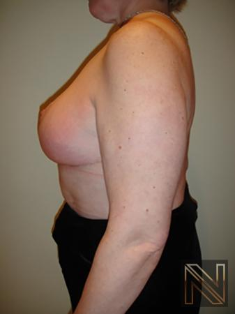 Breast Reduction: Patient 8 - After Image 4