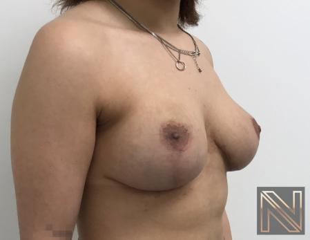 Breast Lift: Patient 17 - After Image 3