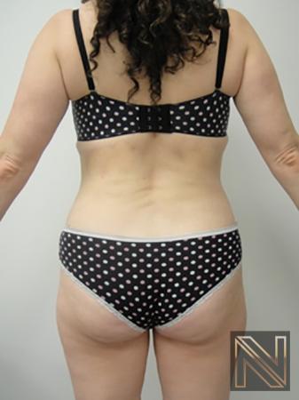 Liposuction: Patient 5 - After Image 4