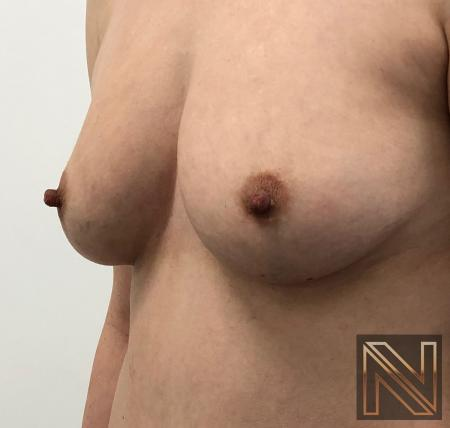 Fat Transfer - Body: Patient 2 - Before Image 2