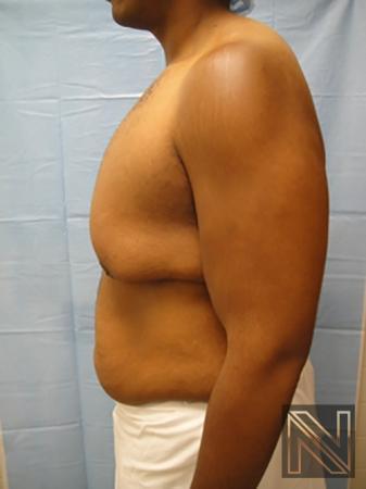 Gynecomastia: Patient 1 - Before 4
