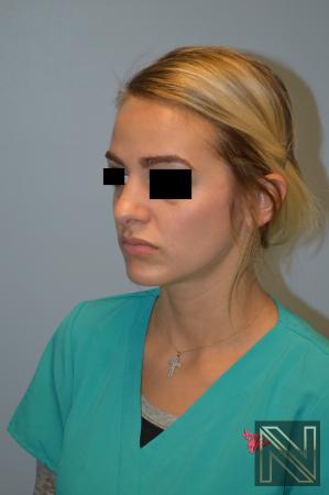Rhinoplasty: Patient 3 - After Image 2